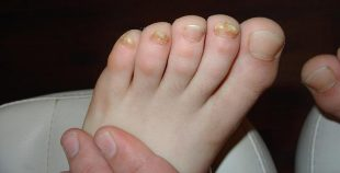 Self-treat nail fungus in children is contraindicated