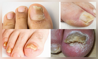 fungus big toe photo