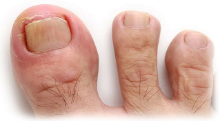 fungus big toe treatment