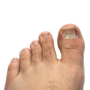 Symptoms of nail fungus on my feet